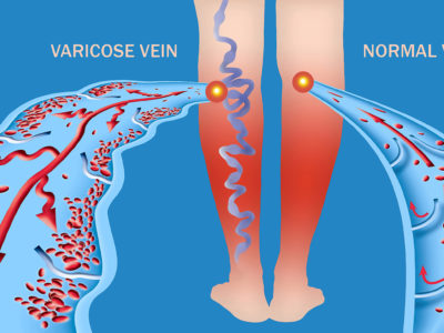 Varicose Veins vs. Spider Veins: What You Need To Know